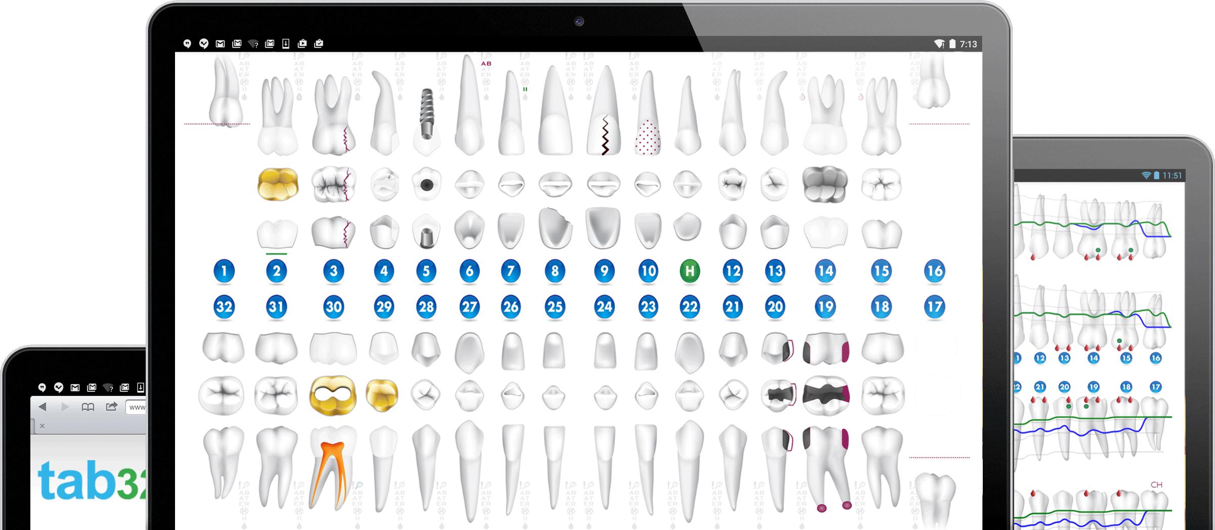 Cloud Dental Software Charting