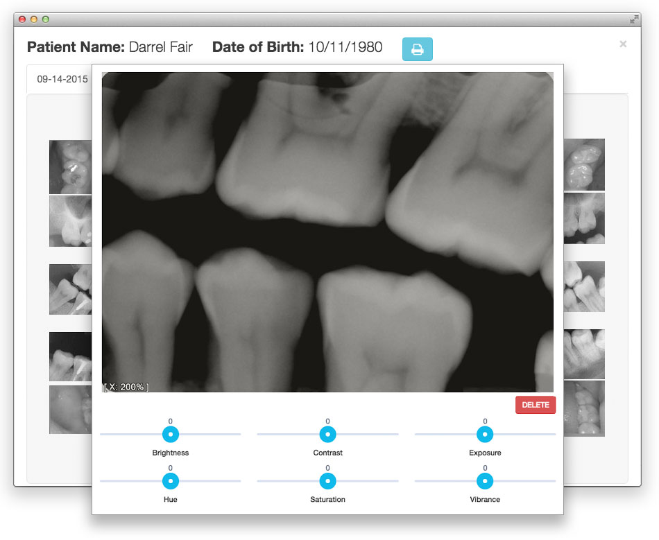 Dental Image Sensor - Dental Practice Management