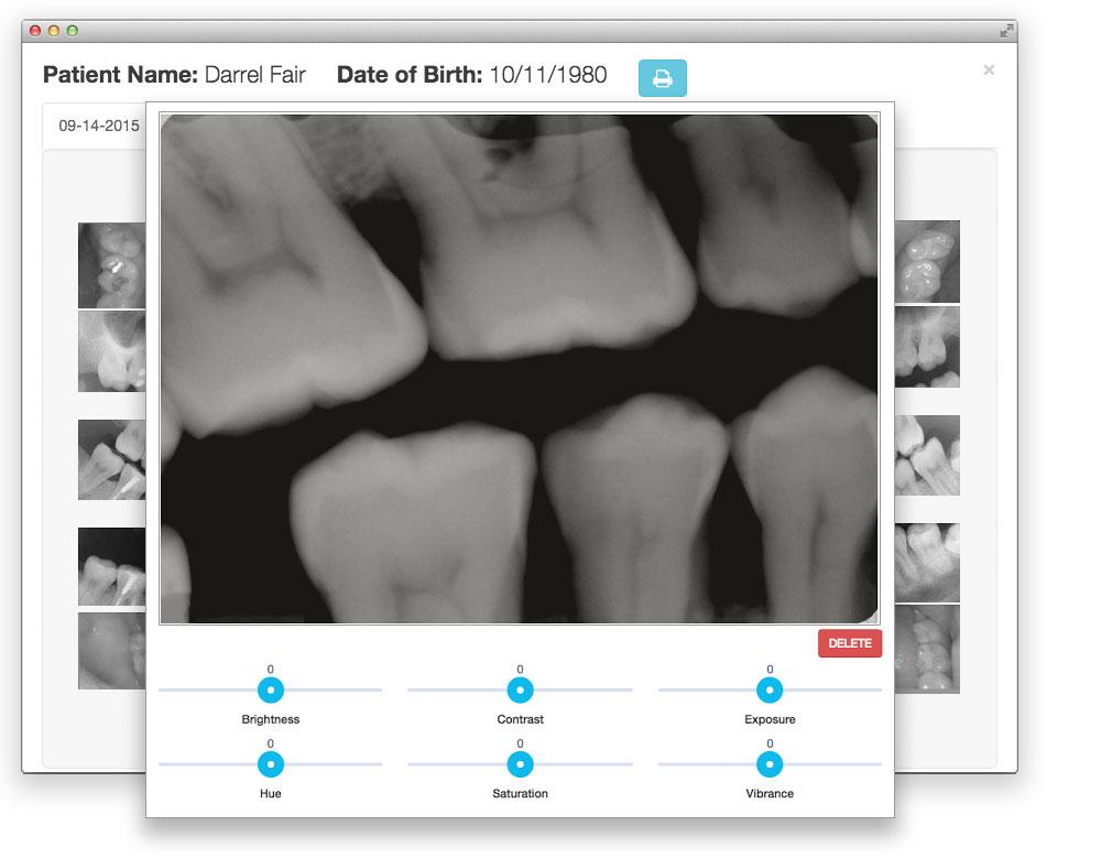 x-ray-flip.jpg
