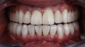 teeth-photo
